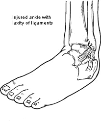 Chronic-Ankle-Instability
